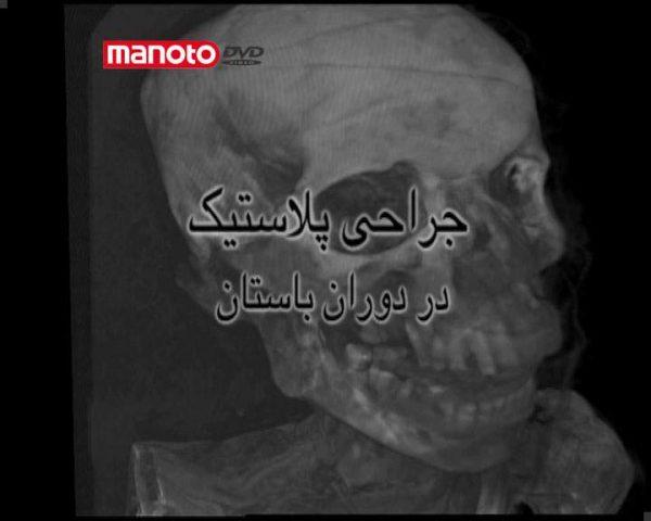دانلود مستند جراحی پلاستیک در دوران باستان - 1 از مجموعه ویژه برنامه