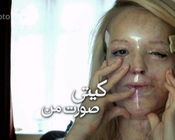 دانلود مستند کیتی; صورت من با دوبله فارسی شبکه منوتو